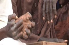 Cameroon sees resurgence of leprosy 20 years after 'eradication'