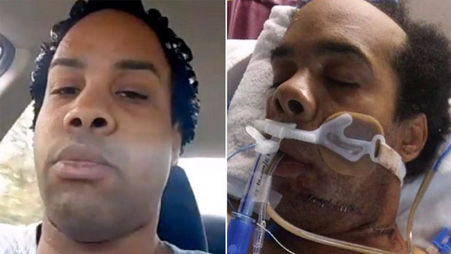 US: Black man shot 6 times by police who mistook his phone for gun