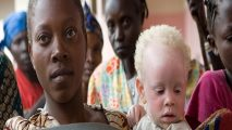 Cameroon Albinos Ask for Greater Attention, Care